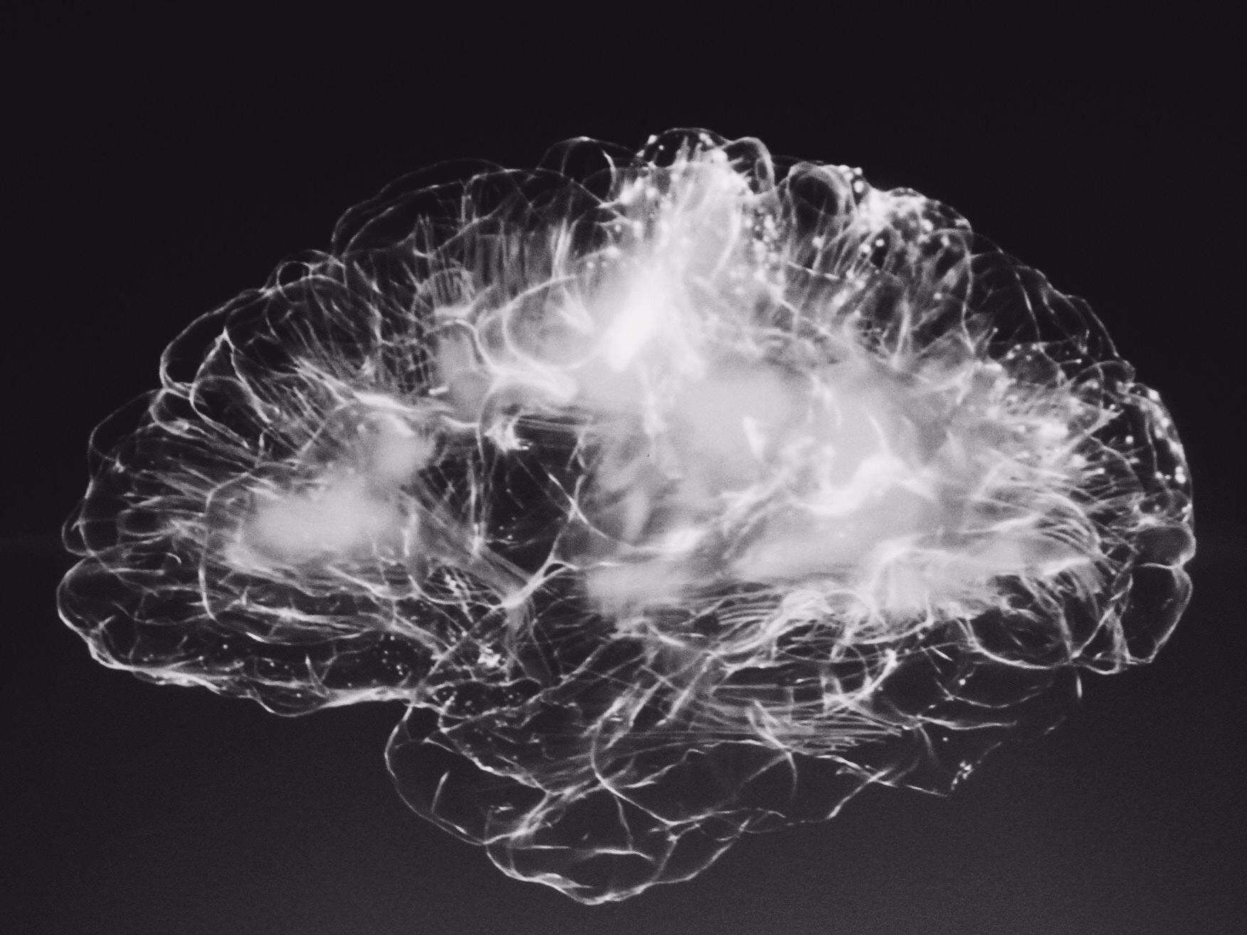 Sequoia Backed Infervision's Stroke Diagnosis Decision Support Product Shines